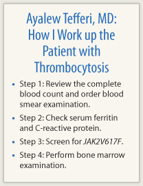 How I Work up the Patient with Thrombocytosis - The ASCO Post