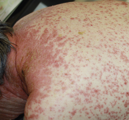 prednisone taper side effects rash