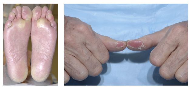 hand foot syndrome treatment