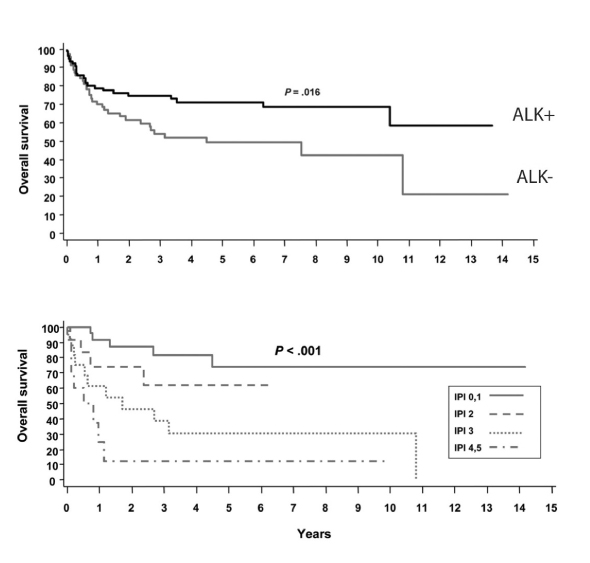 management of a patient with systemic anaplastic large cell lymphoma1 overall survival by alk status and international prognostic index in anaplastic large cell lymphoma